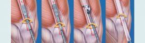 Minimal invasive Entnahme eines Quadricepssehnentransplantates – von Innsbruck in die Welt