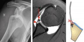 Schulterluxation: Links zeigt die luxierte Schulter / Mitte zeigt ein MR Bild der abgerissenen Gelenkslippe / Rechts zeigt die refixierte Gelenklippe mit arthroskopischer Ankertechnik