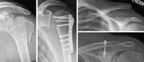 Oberarmkopfbruch: links: gebrochener Oberarmkopf / rechts: Bruch mit Platte stabilisiert AC Luxation: oben: das Schlüsselbein steht massiv höher / unten: Position durch Tight rope korrigiert