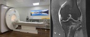 Das 3-Tesla-MRI in der Privatklinik Hochrum zur präzisen Diagnose von Verletzungen aller Art / MR einer akuten Knieverletzung