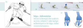Valgus – Außenrotationsmechanismus