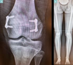 1 Wachstumsfuge mit Titanplättchen blockiert / 2 Beinganzufnahme mit seitengleicher Beinlänge vor Entfernung der Plättchen